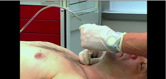 Transtracheal Ventilation