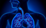 Asthma Exacerbations – The Focus For Treatment Of Severe Asthma?
