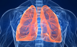 Home Oxygen and Home Mechanical Ventilation Following Life-threatening Exacerbations of COPD