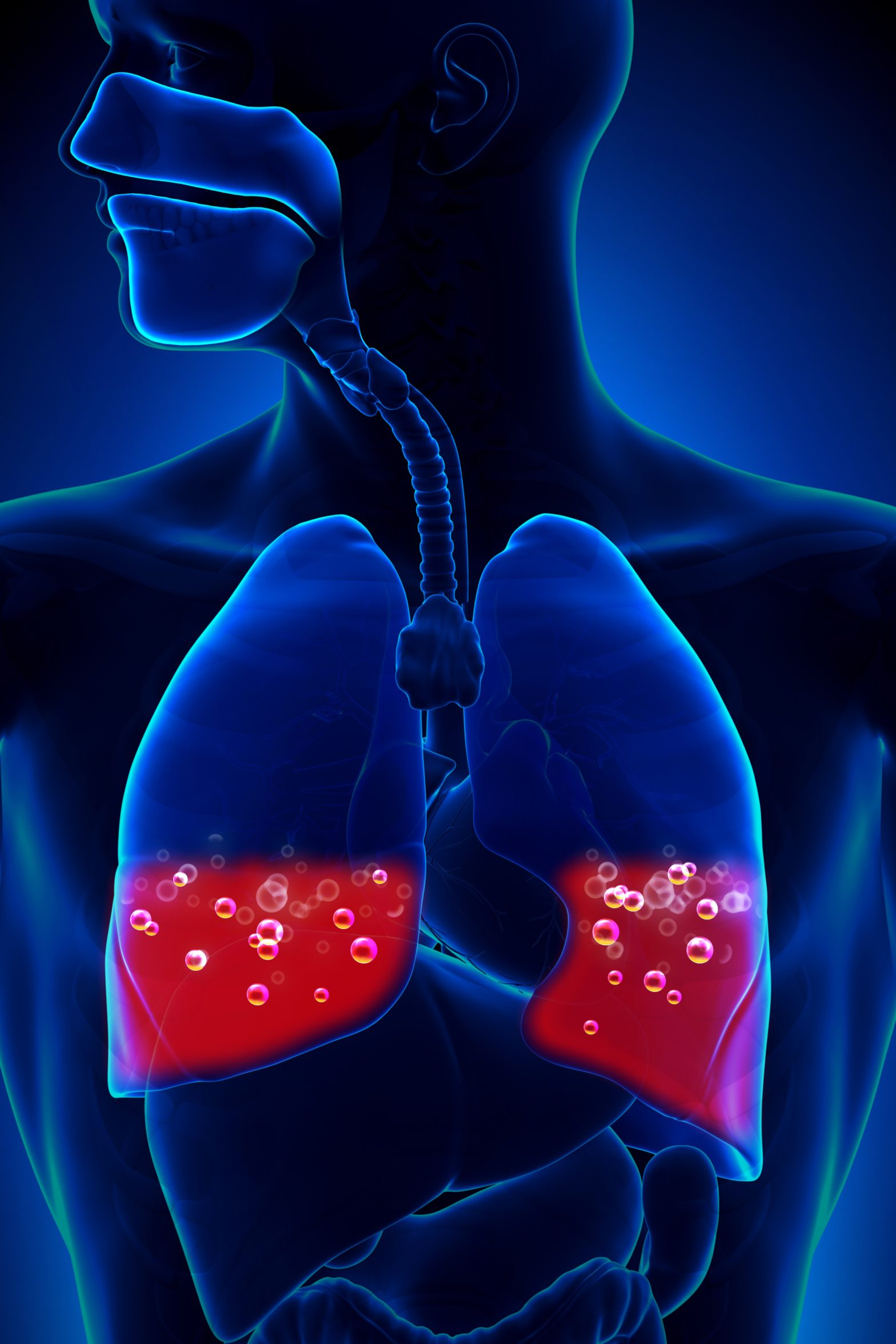 Pulmonary embolism: which patients should receive thrombolytic therapy?