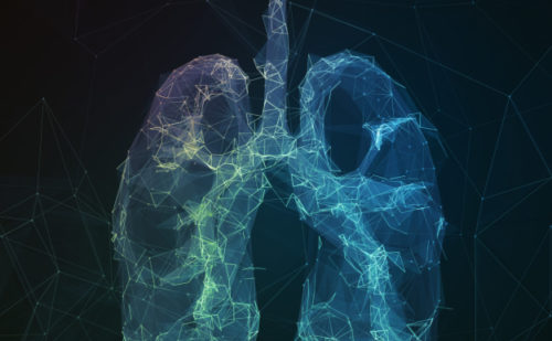 Highlights from the ERS International Congress 2018 – Focus on Idiopathic Pulmonary Fibrosis