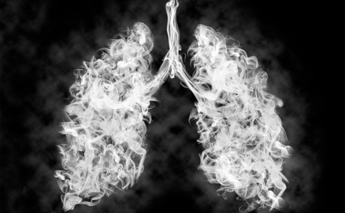 Chronic Obstructive Pulmonary Disease—A Disease of Accelerated Aging