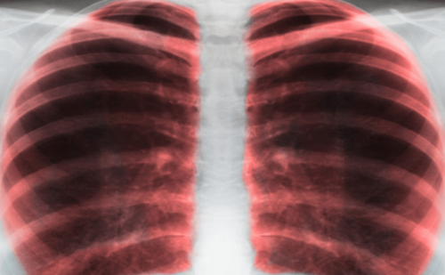 Inhaled Corticosteroid Therapy—The Impact of Formulary Changes on Asthma Control